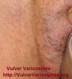 genital varicoză foto