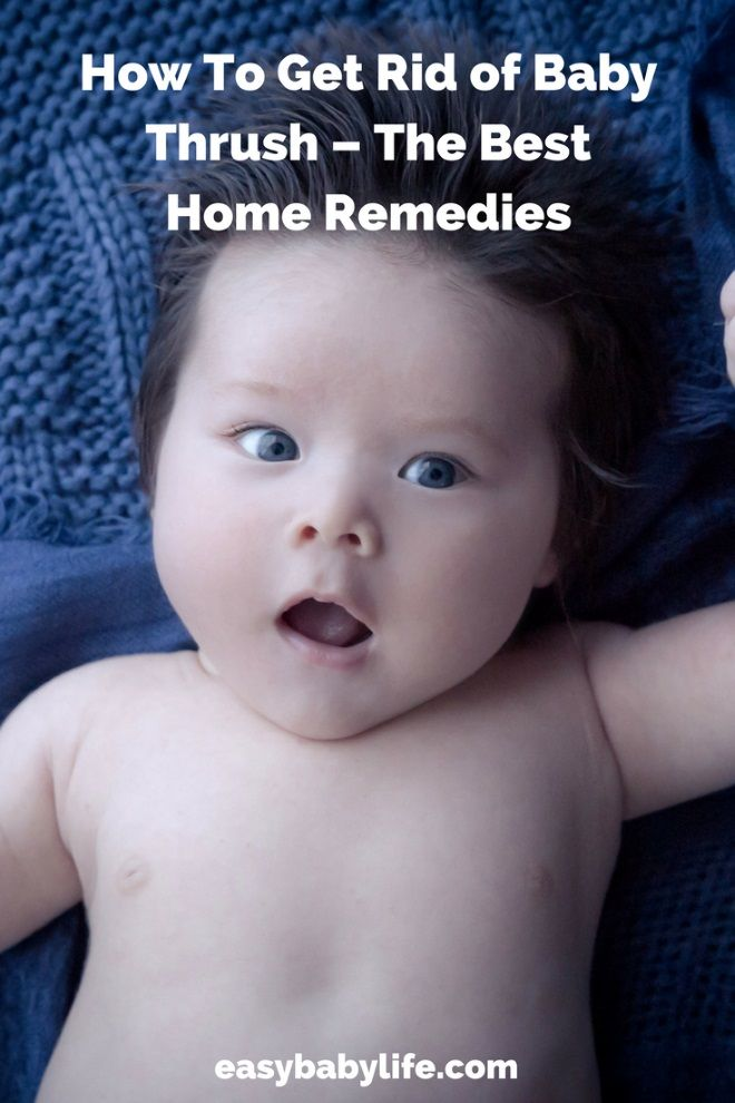 Baby thrush remedies | baby thrush | thrush remedies for babies | thrush and breastfeeding