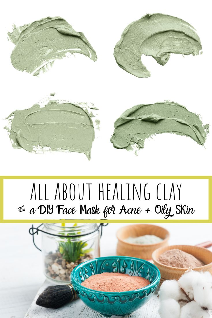 DIY Face Mask for Acne and Oily Skin