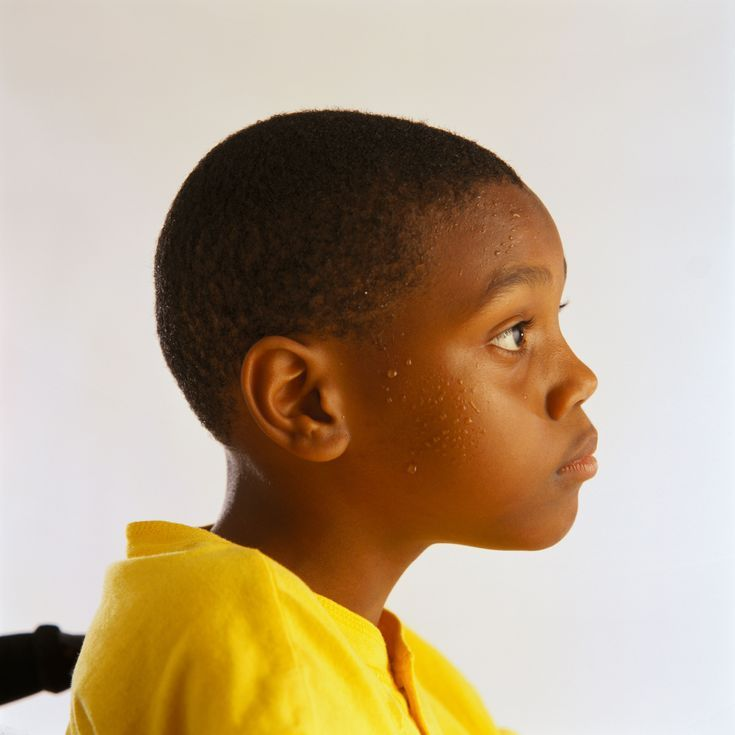 What Are the Causes of Excessive Sweating in Young Children?