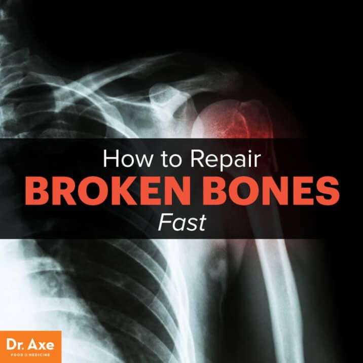 Foods Supplements Oils To Increase Bone Healing Dr Axe Heal Broken Bones Bone Healing Broken Bone