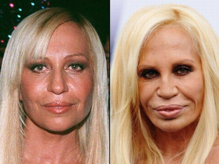 Donatello Versace Before And After Plastic Surgery – – Donatello Versace Before And After Plastic Surgery (more…)