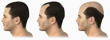 Penumbuh Rambut Botak Alami Cepat
