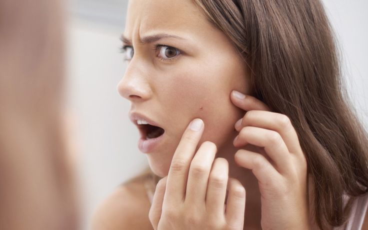 Remove blackheads: This way you can get rid of them forever