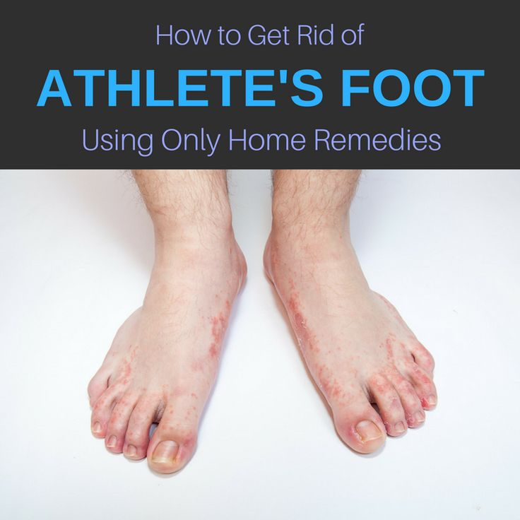 How To Get Rid Of Athlete S Foot Naturally