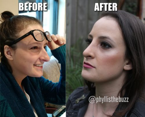 Phyllis from The Rod Ryan Show– #Radio Personality of @945THEBUZZ's #RhinoplastyResults (#NoseJob) by #Plastic Surgeon Dr. Franklin Rose! See her beautiful before & after #rhinoplasty photos watch the videos and read the story on Dr. Franklin Rose's blog …-LINK IN BIO-…  : https://drfranklinrosemd.com/phyllis-radio-personality/