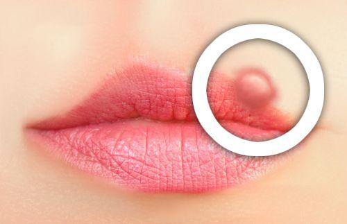 Comment prévenir les boutons de fièvre