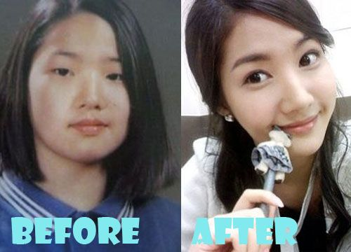 Park Min Young Plastic Surgery Before and After Picture