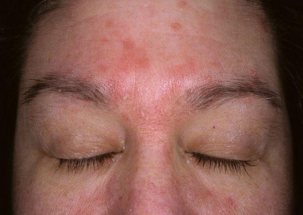 A kor előrehaladtával az arcon és a végtagon úgynevezett öregedési foltok, barnás elszíneződések jelennek meg. Bosszantó lehet ez az esztétikai probléma, tudva