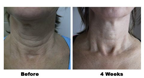 In 4 weeks Skincerity gave Tracey a neck lift. This is an untouched photo because I took the photo. Tracey is my sister and is over the moon with her results.
