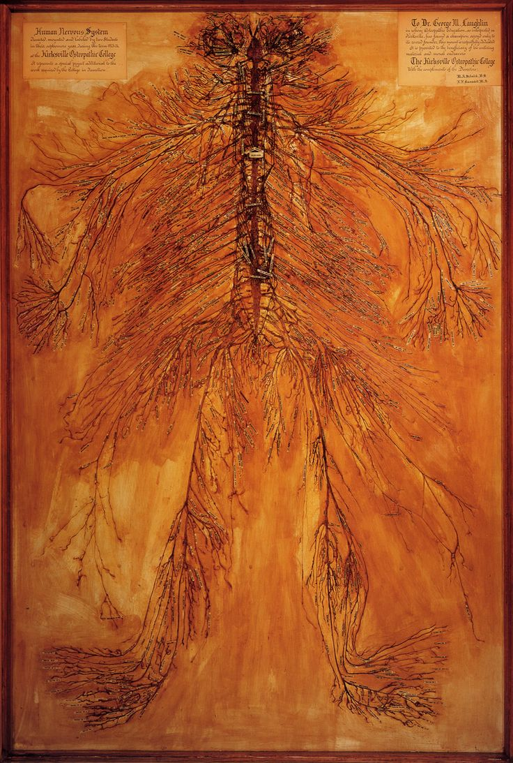 It's a dissection of the entire human nervous system, removed from the body and left intact. The dissection was done by two students at the Kirksville Osteopathic College in the 1920's.   Image courtesy of the Still National Osteopathic Museum, Kirksville Missouri saw this when I interviewed there.