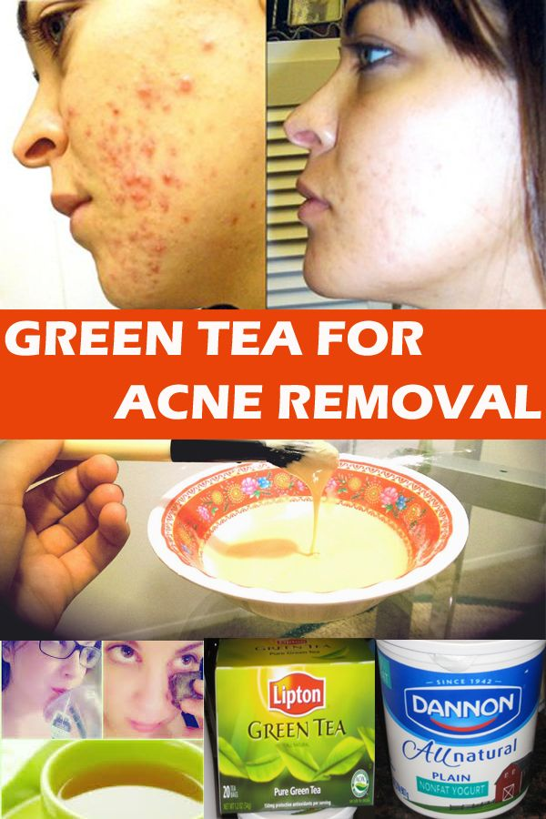 How to Use Green Tea To Remove Acne Fast