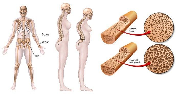 40++ World health organization osteoporosis guidelines ideas