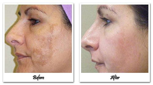 Is there anything better for Hyperpigmentation?  http://www.amazon.com/gp/product/B00MH24RWQ  $35.97