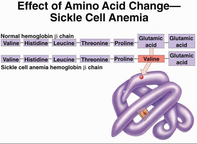 Sickle Cell anemia - Valine replaces Glutamic Acid in position 6.
