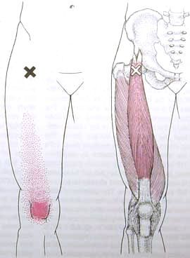 Rectus Femoris Trigger Point Diagram