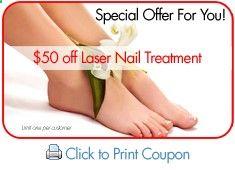 nail fungus removal using pinpointe laser