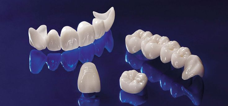 Crowns are caps that encases the tooth surface, restoring it to its original shape & size. Dental bridges literally bridge the gap between missing teeth.