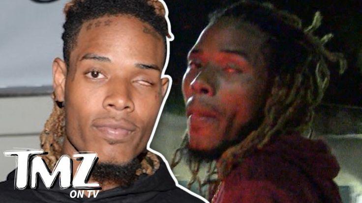 Fetty Wap- Eye Don't Need No Stinkin' Eye! (TMZ TV)