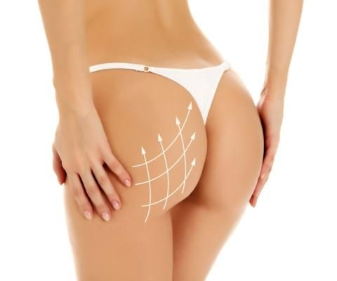 Star Curves as the Solution for Buttock Enhancement