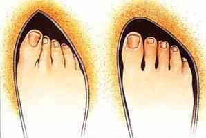 schoenen en ruimte voor de tenen