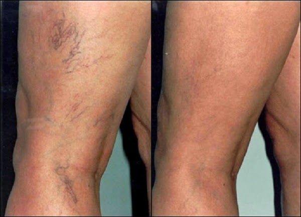 As varizes são extremamente desagradáveis e causa de muitos desconfortos.Ninguém gosta de tê-las.Elas ocorrem com maior frequência em pessoas que necessitam ficar em pé por longos períodos.