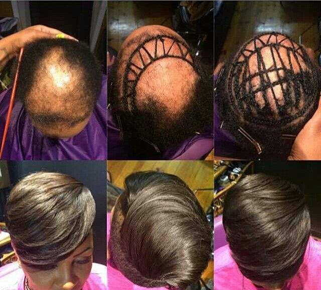 There is no impossible with any woman that suffers hair ...