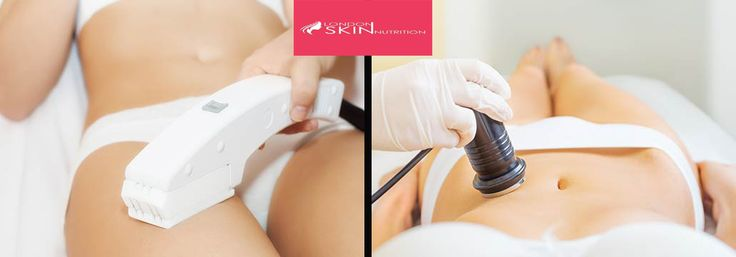 If you are suffering from #stretchmarks, you must contact to a #reputed and reliable clinic for treatment. #LondonSkinNutrition is one of the best clinics for this treatment. Women are mainly #suffered from this problem in her #pregnancy period. If you want to #more information about this #treatments then your must contact to www.londonskinnutrition.com #today.