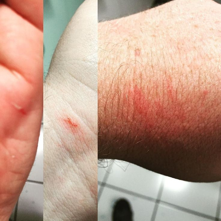 Heridas de la batalla menos mal que el Nico no heredó mis manos de empanada