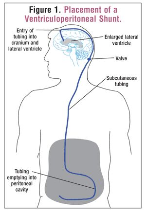 Placement of a Ventriculoperitoneal Shunt .....USPharmacist.com > Review of the Treatment & Management of Hydrocephalus