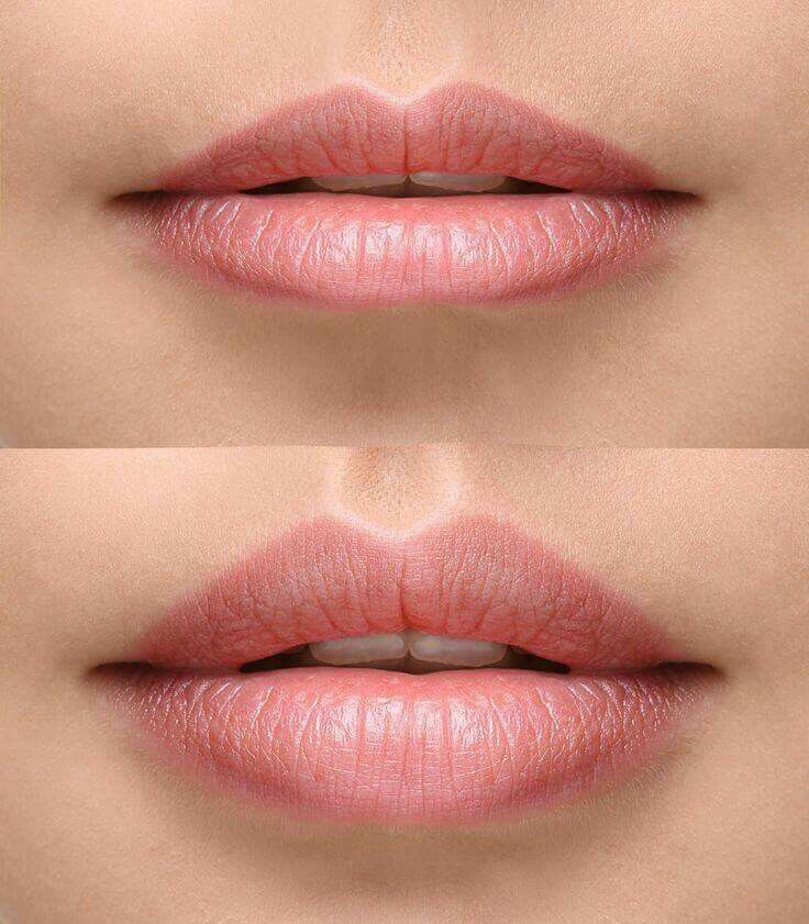 Before & After Lip Filler Get pouty and perfect lips safely and easily #Fillers #beauty #forever #cosmedics #perfectLips#perfection#j&jclinic