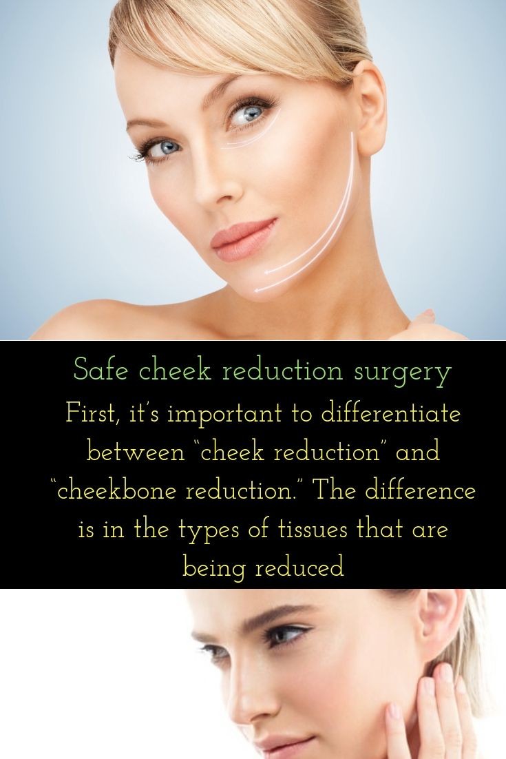 Facial hair removal new jersey