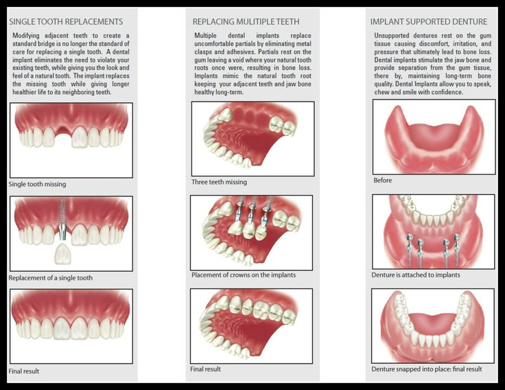 23 best images about Implant Dentistry on Pinterest