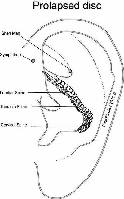 Prolapsed disc ear acupuncture protocol   par CPD Group