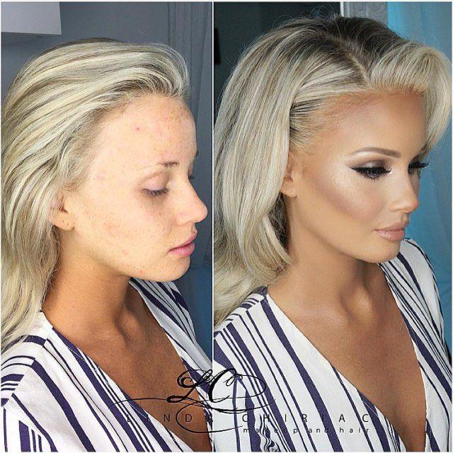 beautiful before & after ✨@beautybylindachiriac✨ #vegas_nay