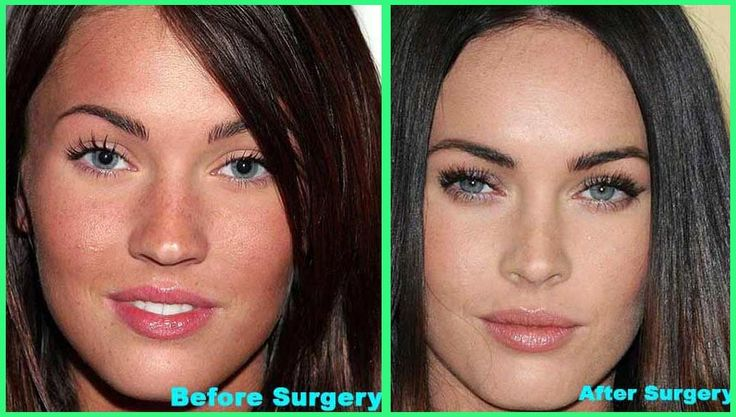 Plastic Surgery Before And After: Megan Fox Before And After