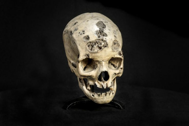 This ravaged skull, from a 26-year-old woman, shows the effects of late-stage syphilis. The bones of the cranium, especially the frontal bone, are deeply invaded. The vomer (which forms part of the nasal septum) is partially destroyed. The alveolar processes (the ridges that hold the teeth) are so affected that most of the teeth were lost before death