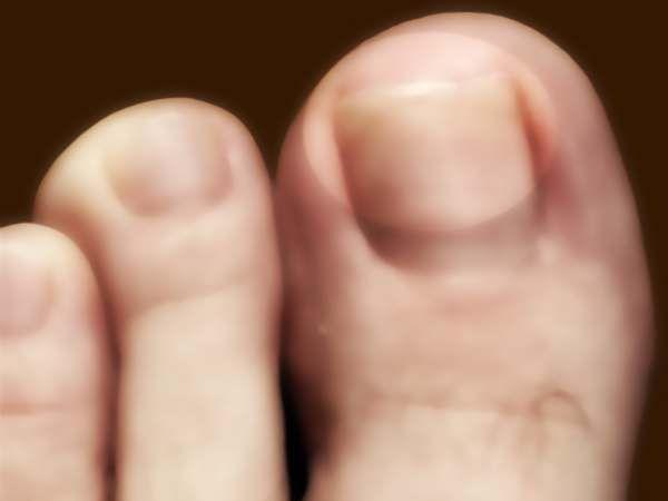 Cura delle unghie dei piedi e delle mani