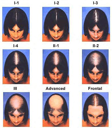 Female_Hair_Loss-scale