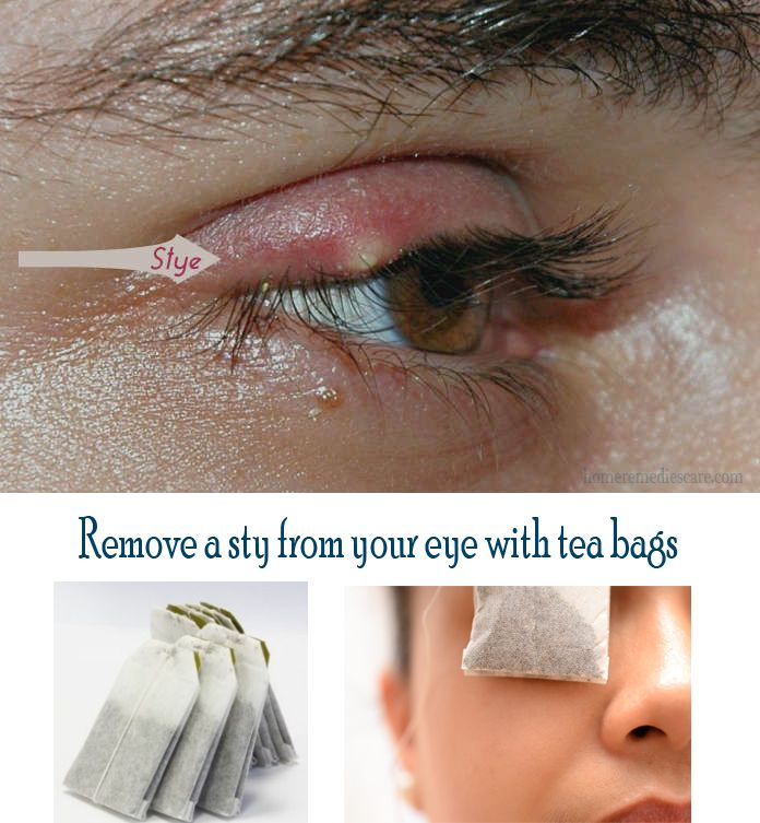 how to get rid of a cyst in eye