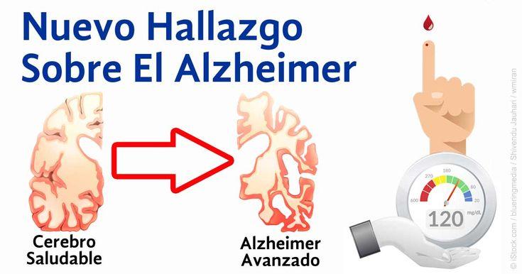 La Alimentación con Azucarados Puede Contribuir al Alzheimer