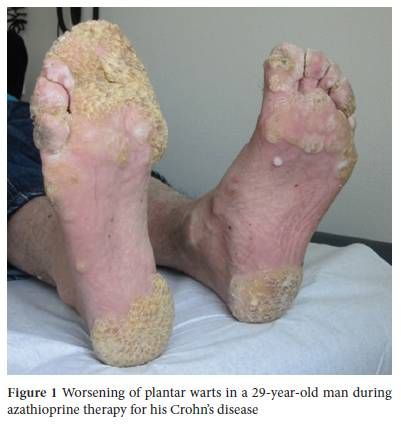 Diseased Skin - Plantar Warts Warts are a form of ...