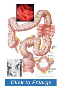 Learn about diverticulosis and diverticulitis attacks, development and management at www.puristat.com