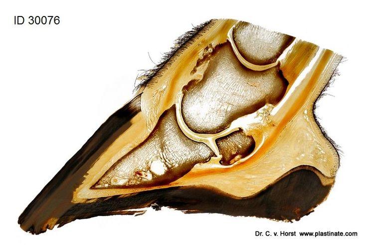 Plastinat Pferdehuf mit Darstellung der Pathologie einer Exostose am Kronbein und Knochenzyste im Strahlbein (Os naviculare) sowie Hufbein (Phalanx distalis)