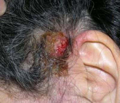 7 Best Scabs And Scabbing Images On Pinterest Scalp