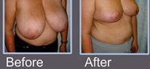 Breast Reduction Clinics in Bangalore