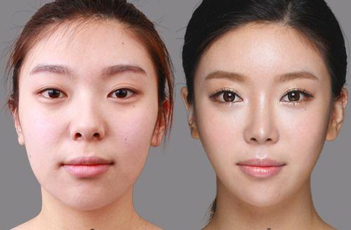 Asian Nose Augmentation