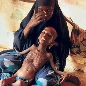 "Hunger, this poor baby.... makes me tear up and sob. help, anyone take a step w me. I am a poor woman and live paycheck to paycheck, but what is really $5.00 to donate and ""STAMP OUT HUNGER?"" if I can do it SO CAN YOU!"