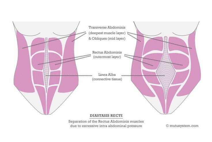 Diastasis Recti test + exercises   What is diastasis recti + how to fix it   Huffington Post #diastasis #huffingtonpost #mutusystem