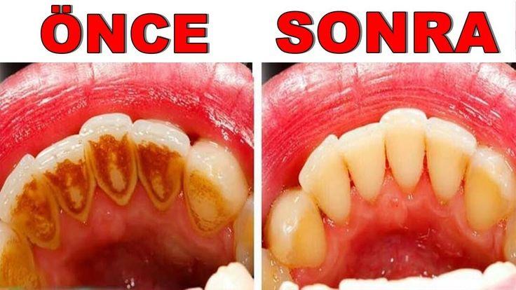 SADECE 3 GÜNDE Evde Diş Beyazlatma ve TARTAR Temizleme